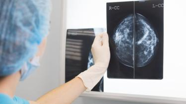Artificial Intelligence More Accurate than Doctors in Diagnosing Breast Cancer